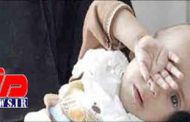 6 استان در معرض سوءتغذیه شدید