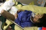 شکنجه وحشیانه دختر ۶ ساله توسط مادر سنگدل