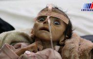 کودک کشی نردبان ترقی بن سلمان